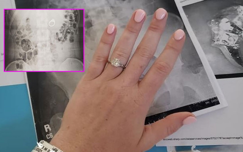 Woman swallows engagement ring during bad dream