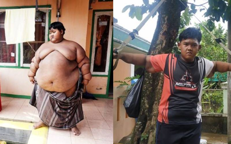 'World's fattest boy' shows off trim physique after losing 108kgs with lifestyle changes