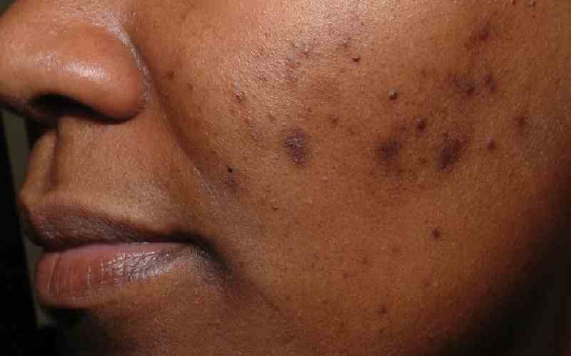 How to get rid of acne scars with these home remedies