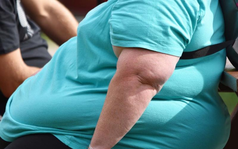 Why your weight might put you at risk of succumbing to Covid-19