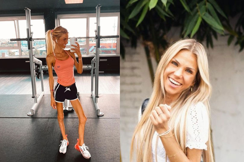 Instagram star passes away after saying she 'didn't want to die' in anorexia battle