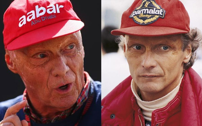F1 legend, Niki Lauda passes away aged 70 after undergoing kidney dialysis