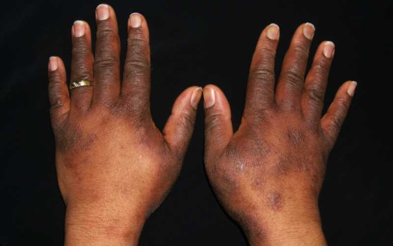 How to get rid of eczema, beat the itch and scratch cycle