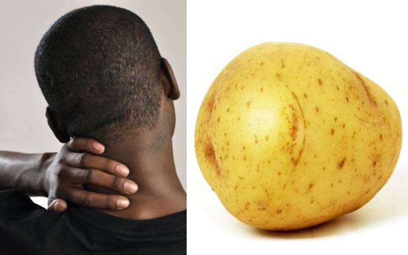 How you can use a potato to help get rid of neck pain and migraines, according to expert