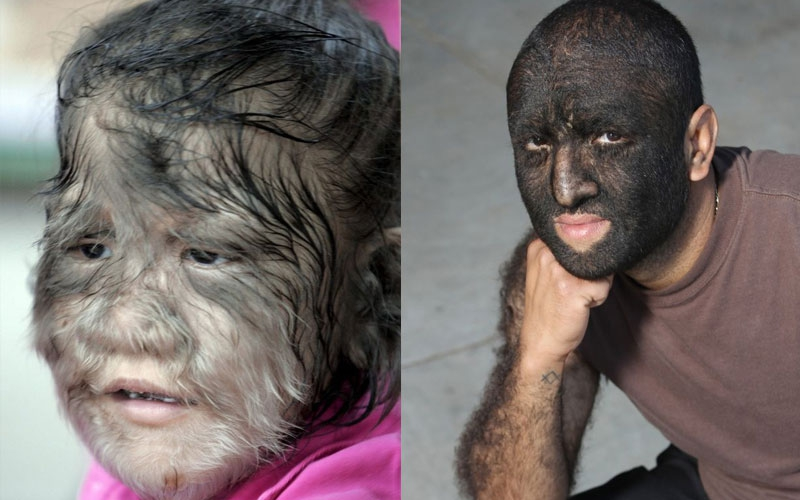 Children get 'werewolf syndrome' after taking dodgy medicine
