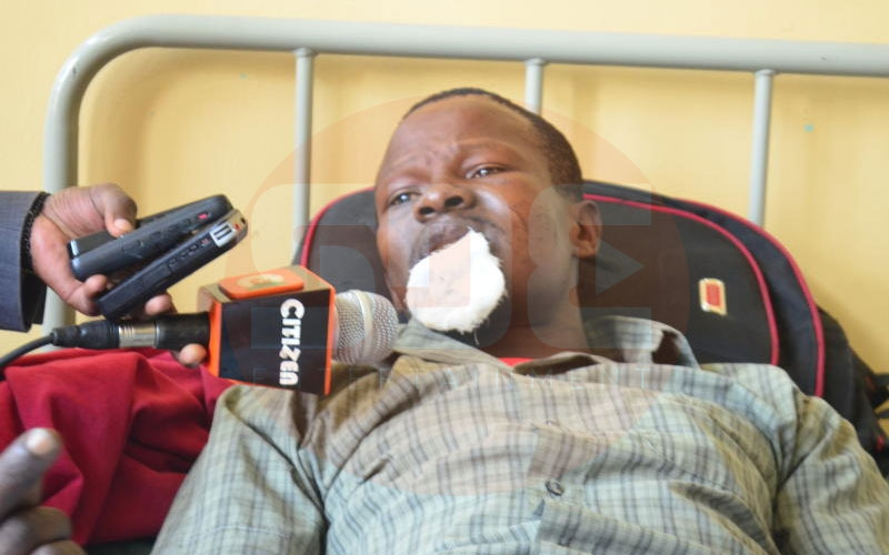 Narok man hospitalised after wife bites off lip for refusing to give her fare