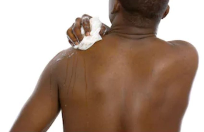 Woman busts cheating husband after noticing pimples on his back had been popped